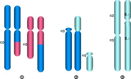 構造異常の例